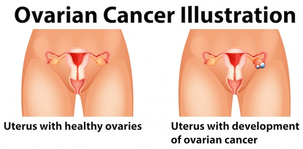 Diagram showing ovarian cancer in human
