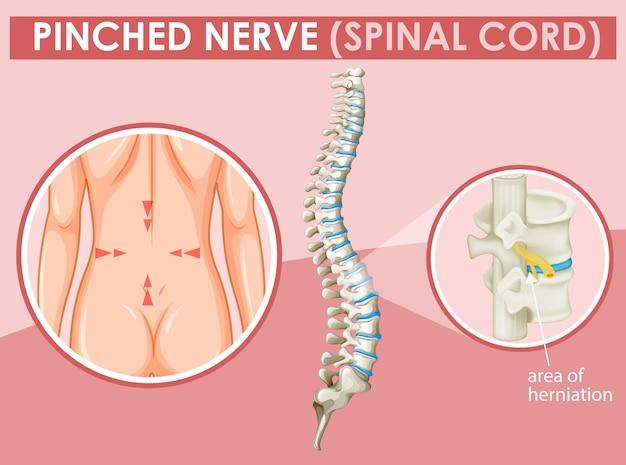 Diagramma che mostra il nervo schiacciato nell'uomo