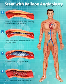 인체에서 풍선 혈관 성형술로 스텐트를 보여주는 다이어그램 프리미엄 벡터