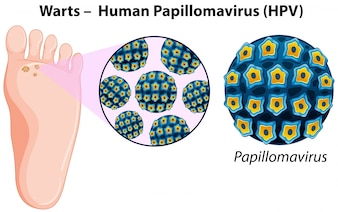Diagram showing warts in human foot
