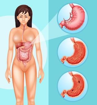 Диаграмма, показывающая женщину и рак в желудке
