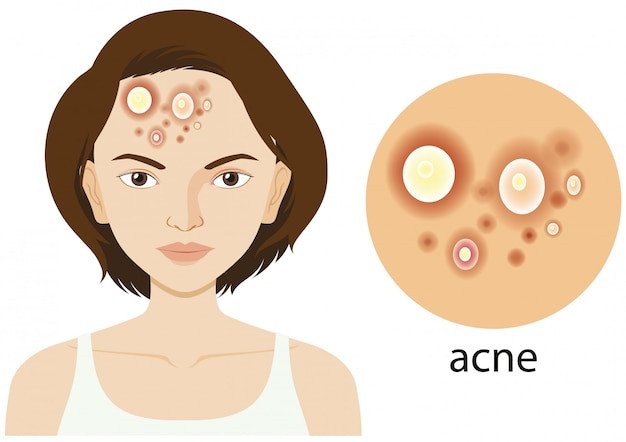 Diagram showing woman with acne problem