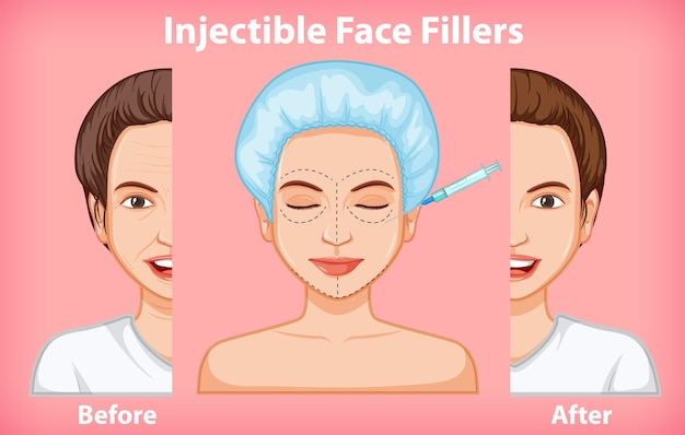 Different of face fillers before and after