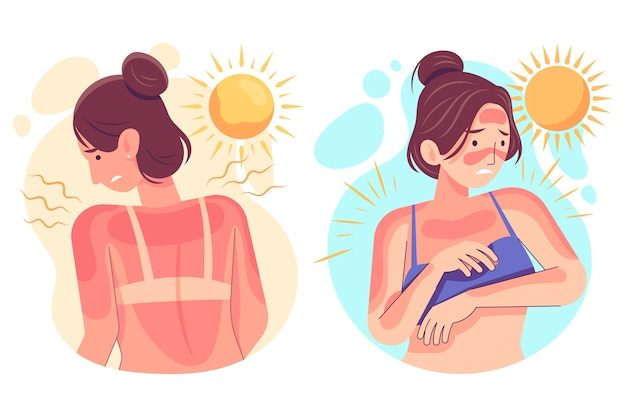 Different people with a sunburn