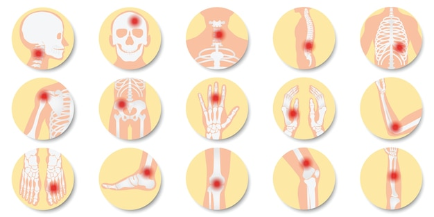 Disease of the joints and bones icon set on white background