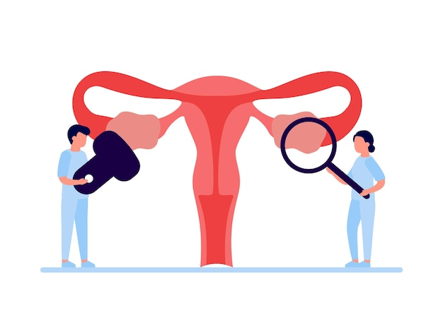 Doctor checkup reproductive system of woman health and disease uterus and ovary internal organ