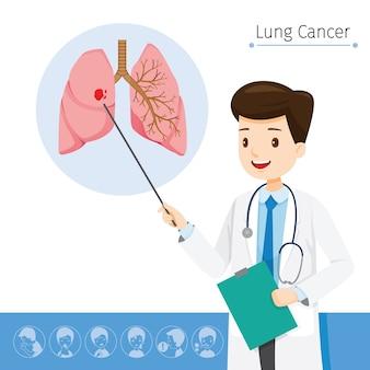医師は肺がんの原因について説明します
