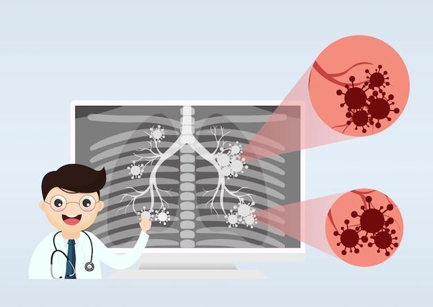 Доктор показывает рентген легких