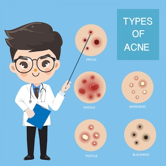 Doctors recommend typ of acne.