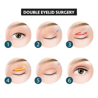 二重眼瞼手術イラストの踏み方
