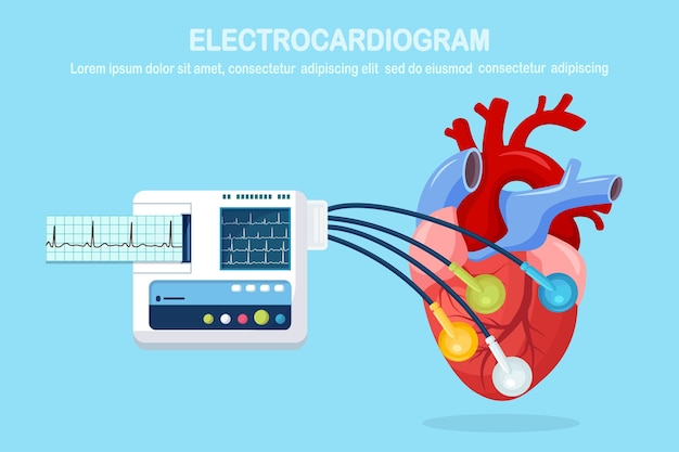 Ecg machine isolated on background. electrocardiogram monitor for diagnosis human heart with ekg graph. medical equipment for hospital with chart of heartbeat rhythm. flat design