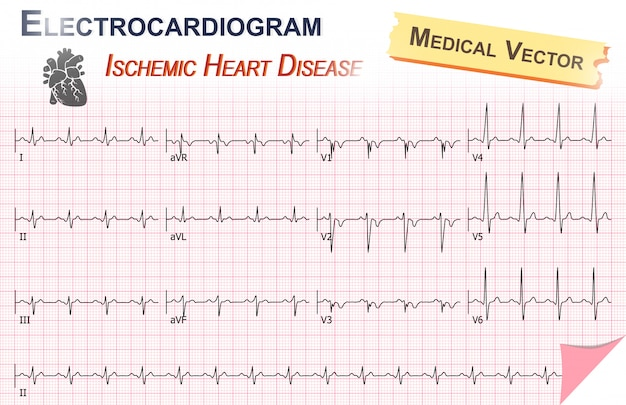 Electrocardiogram of ischemic heart disease ( myocardial infarction )