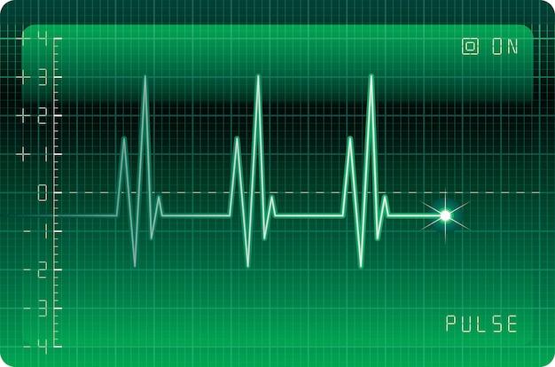 Монитор электрокардиограммы
