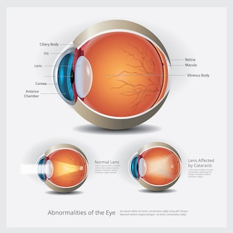 Eye anatomy with eye abnormalities