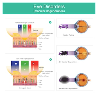 Eye disorders macular degeneration. illustration explain eyes of vision  symptoms which may result in blurred point black or no vision, early on there.