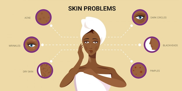 Facial skin pimples acne different types on african american woman face pore comedones cosmetology skincare problems concept flat portrait horizontal