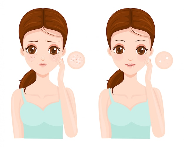 Facial skin problems with large pores