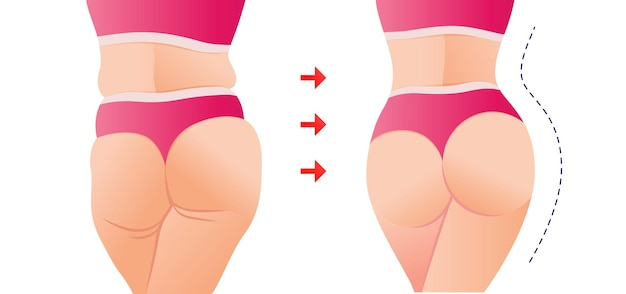 Fat to fit before and after weight loss fat and slim woman