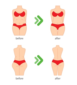 Fat and slim woman figure before and after diet fitness or liposuction