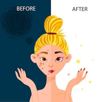 「前」と「後」の女性キャラクターが顔のニキビを取り除きます。