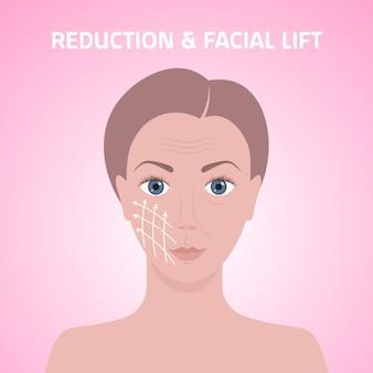 화장품 의료 절차 얼굴 리프트 감소 치료 스킨 케어 주름 개념 초상화에 대한 피부에 마크 화살표 라인과 여성의 얼굴