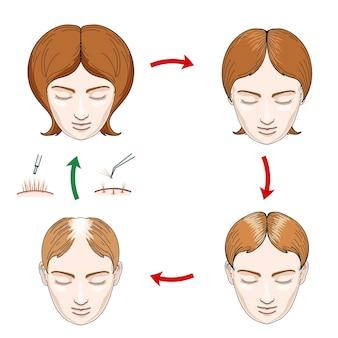 여성 탈모 및 모발 이식 아이콘. 탈모 여성, 케어 헤어, 머리 여성, 두피 인간, 성장 머리카락, 벡터 일러스트 레이션
