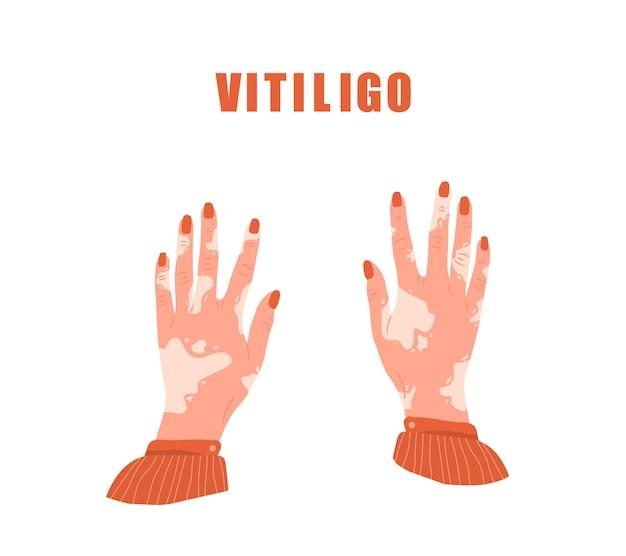 백반증이 있는 여성의 손. 세계 백반증의 날.