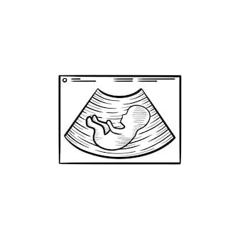태아 초음파 손으로 그린 개요 낙서 아이콘입니다. 흰색 배경에 격리된 인쇄, 웹, 모바일 및 인포그래픽을 위한 자궁 벡터 스케치 그림에 있는 아기의 임신 초음파.