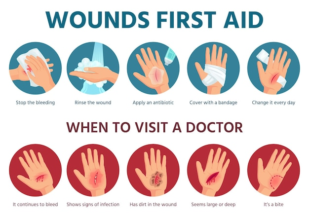 Первая помощь при ранении на коже. процедура лечения кровоточащего пореза. повязка на поврежденную ладонь. инфографика безопасности чрезвычайной ситуации в векторе. иллюстрация помогает коже, травмам и травмам