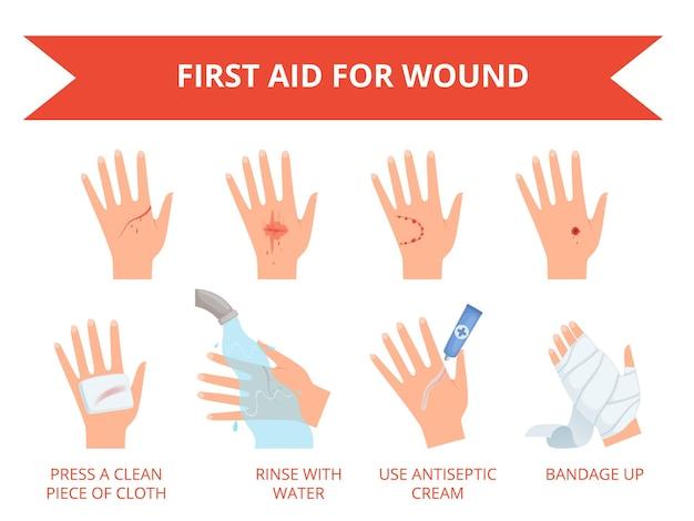 Первая неотложная помощь при травмах руки человека с перевязкой, кровотечением, спасательным набором.