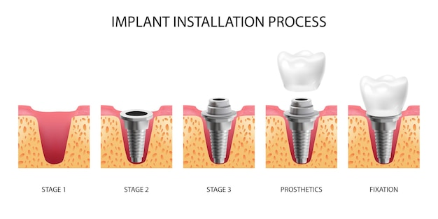 Cinque fasi dell'installazione dell'impianto dentale realistiche isolate