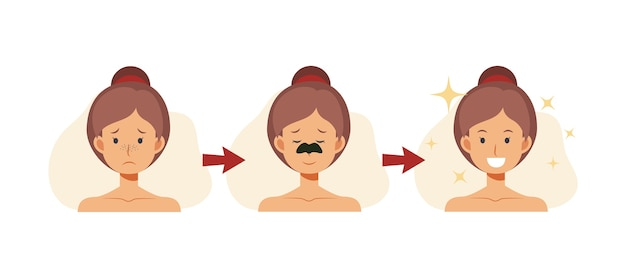Flat cartoon illustration of woman using anti-blackhead nose strip. skin problem shows the result of using care cosmetic product.