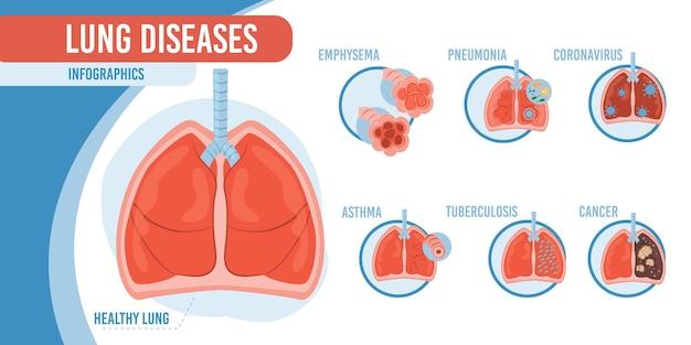 플랫 만화 인포 그래픽, 건강한 폐