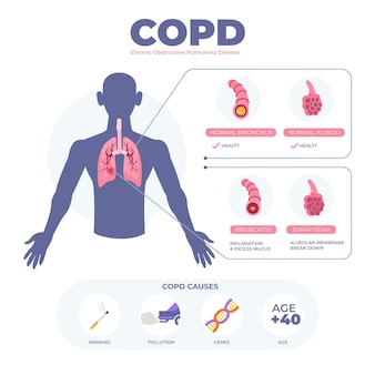 Flat-hand drawn copd infographic template
