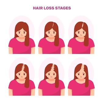 Коллекция этапов выпадения волос