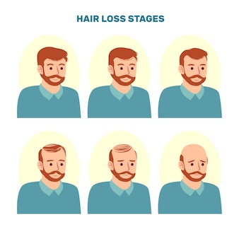 Flat-hand drawn hair loss stages collection