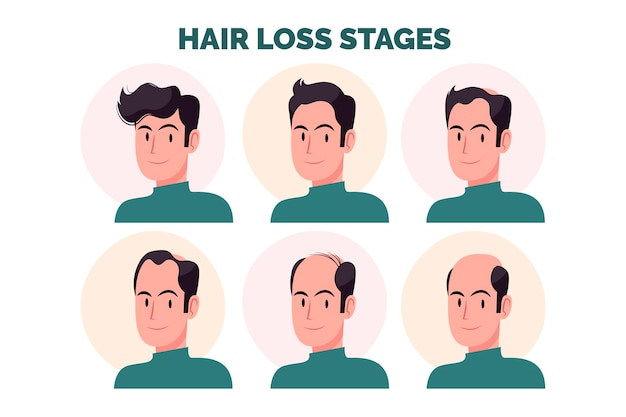 Flat-hand drawn hair loss stages illustration with man