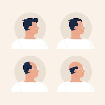 Illustrazione di fasi di perdita di capelli disegnata a mano piatta