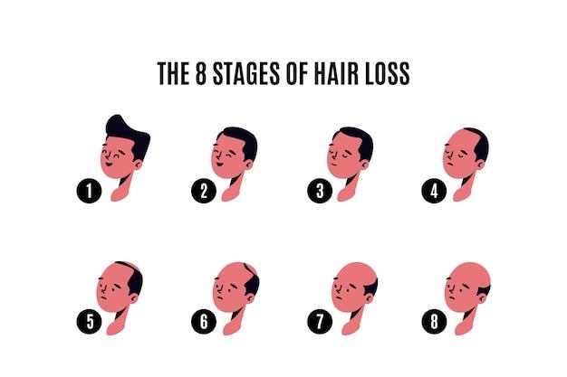 Плоская рисованная иллюстрация этапов выпадения волос