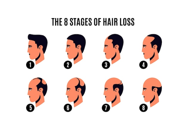 Flat-hand drawn hair loss stages illustration