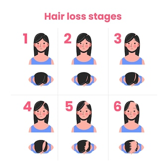 Flat-hand drawn hair loss stages with woman