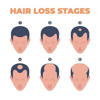 Стадии выпадения волос, нарисованные от руки