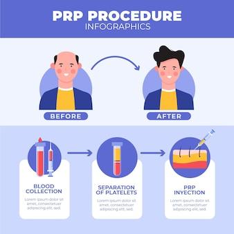 Infografica procedura prp disegnata a mano piatta