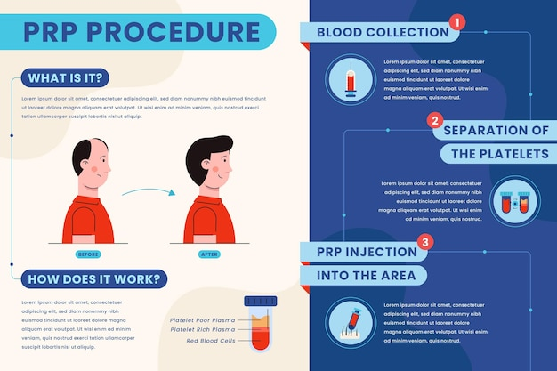 Flat-hand drawn prp procedure infographic