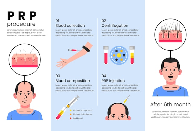 Flat-hand drawn prp procedure infographic