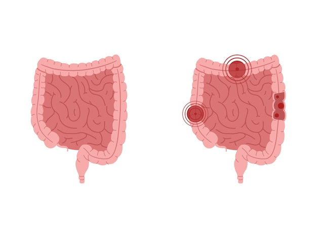Flat illustration of healthy intestines and intestines with inflammatory diseases.