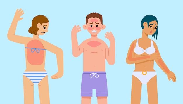 Flat people with a sunburn set