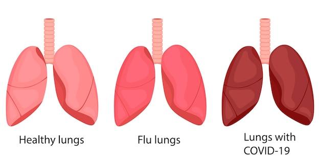 독감 폐, covid-19, 건강합니다. 질병으로 인해 폐색이 변합니다. 만화 스타일의 그림입니다.