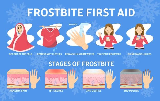 Инфографика первой помощи при обморожении. переохлаждение в холодное зимнее время года. повреждение пальцев, стадии обморожения. иллюстрация