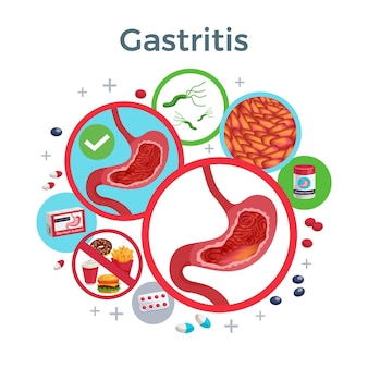 Gastritis disease symptoms causes medicine flat circular composition of healthy and affected stomach bacteria food